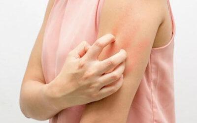 Problèmes de peau signification psychologique